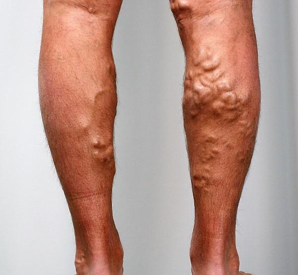 Тромбы на ногах – фото